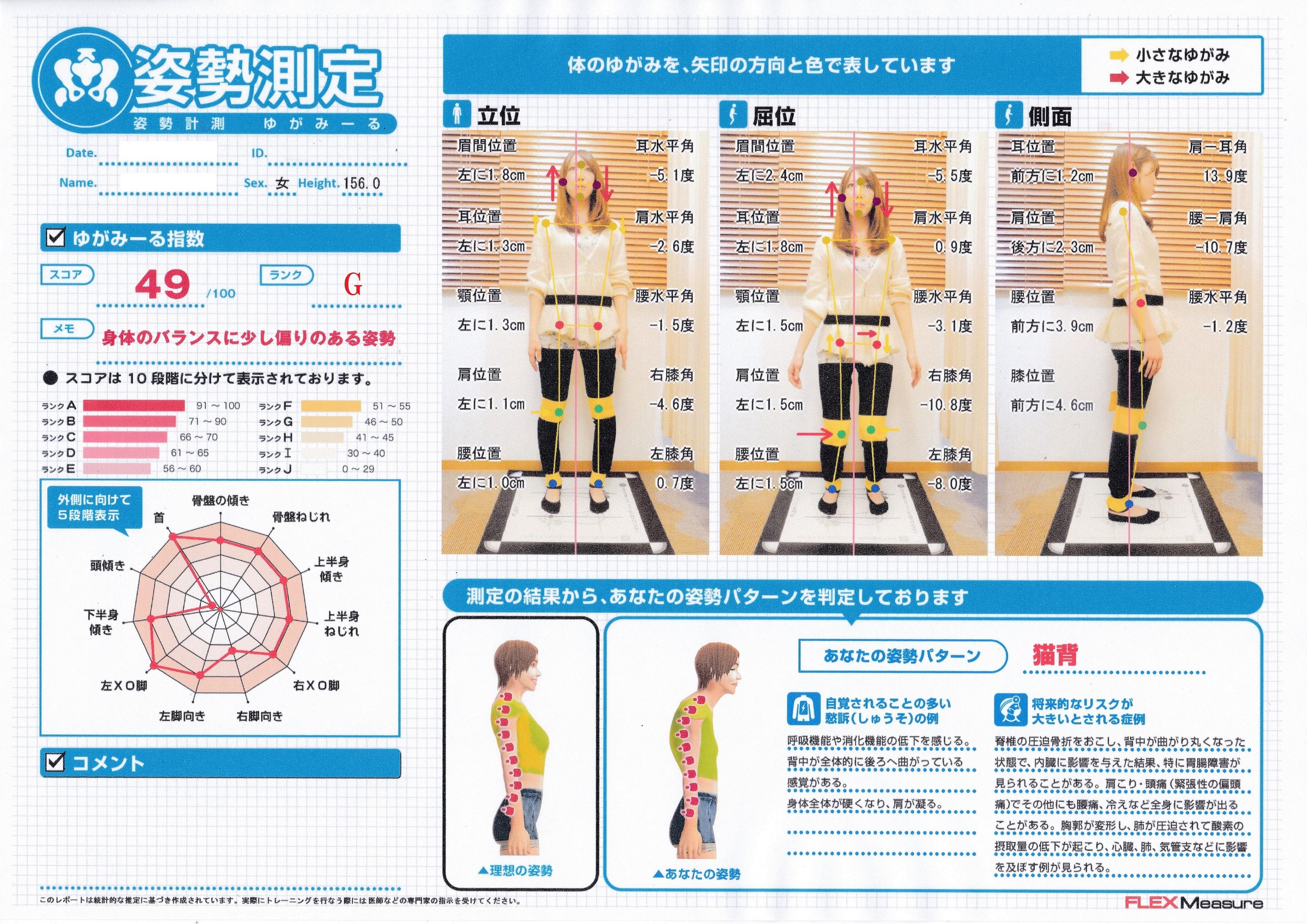 細かく姿勢分析をチェックできるのはおゆみ野、鎌取駅のセレネ整骨院